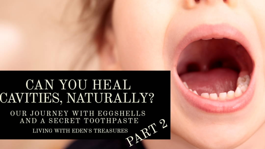 Can You Heal Cavities, Naturally? Part 2